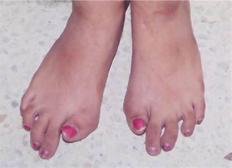 Short, monophalangic great toe with valgus deformity in